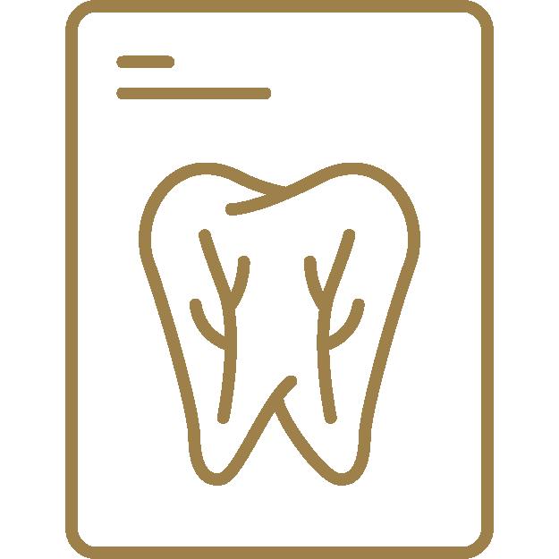 Dantų kanalų gydymas mikroskopu (endodontija)